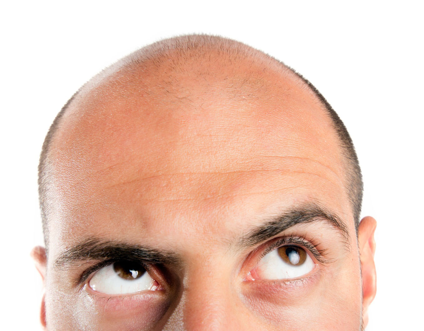 Top Major Causes of Hair Loss in Men